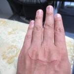 ロシ子に引っかかれた傷跡。