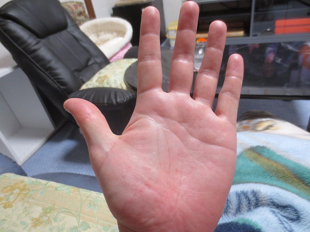 噛まれ、私の手は穴だらけ。