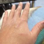 ロシ子に引っ掻かれた私の左手