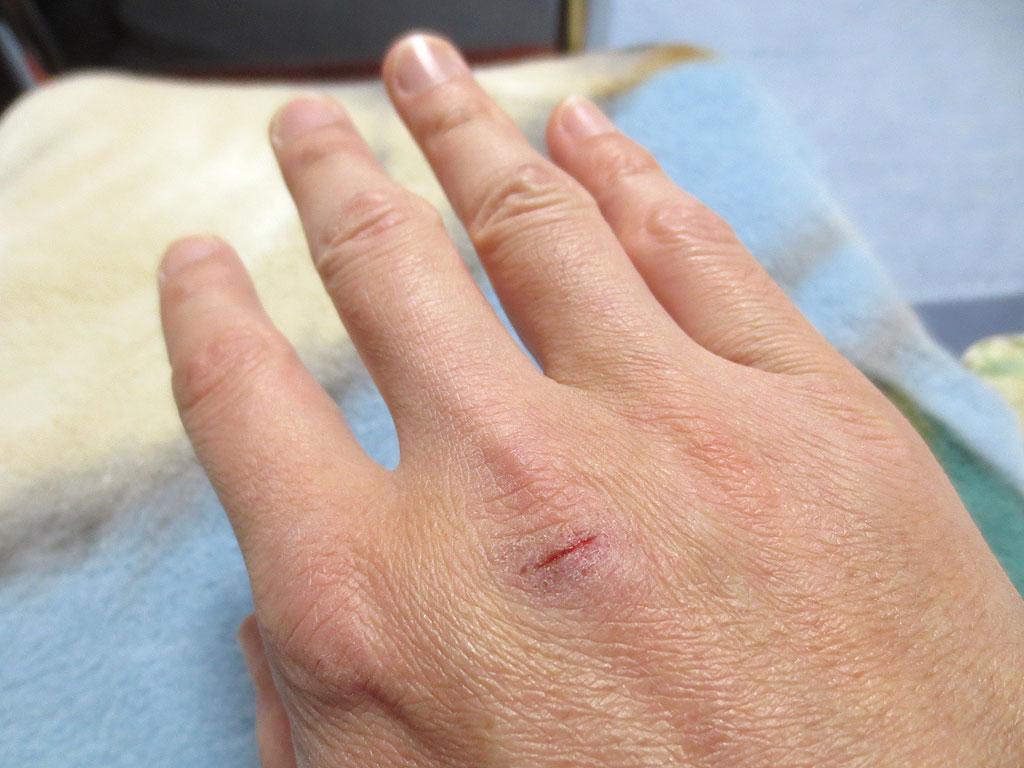 傷跡のある、私の右手