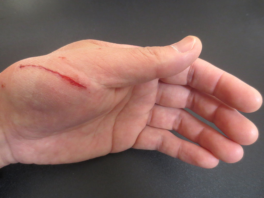 私の手の傷②