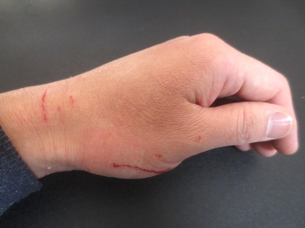 私の手の傷③
