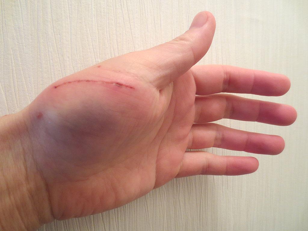 私の手の傷④