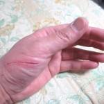 昨日の風呂上がりの私の手。