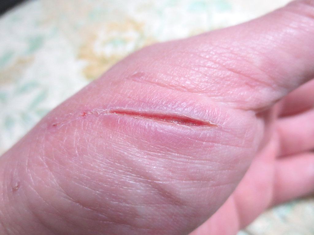 痒くなって来た私の手の傷。