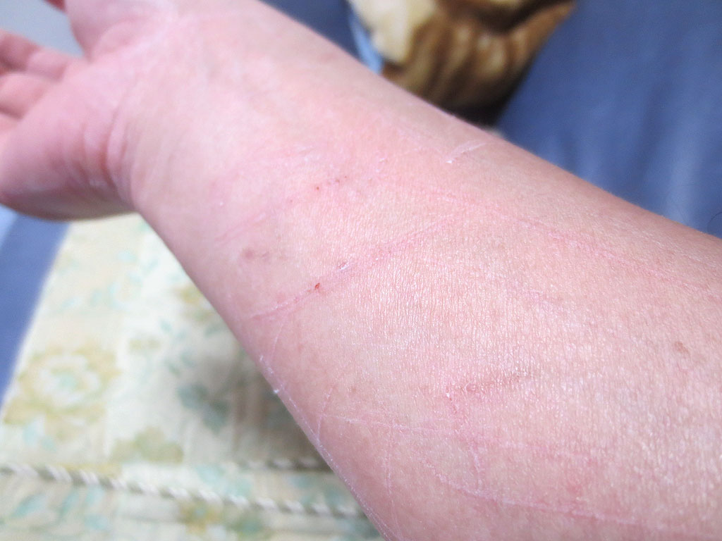 私の傷だらけの右腕。