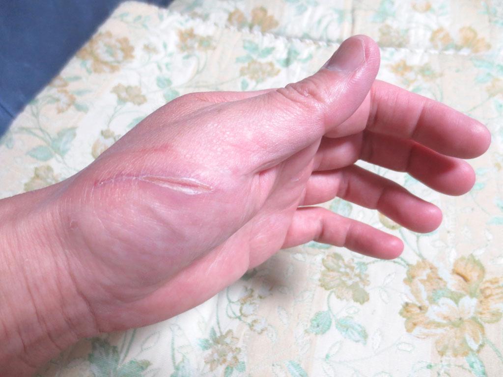 昨日の晩の私の手の傷。