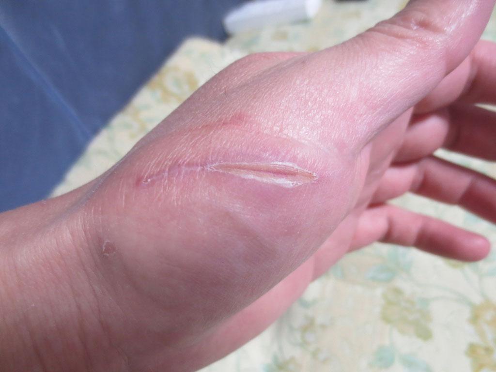 ほぼ、塞がった、私の手の傷。