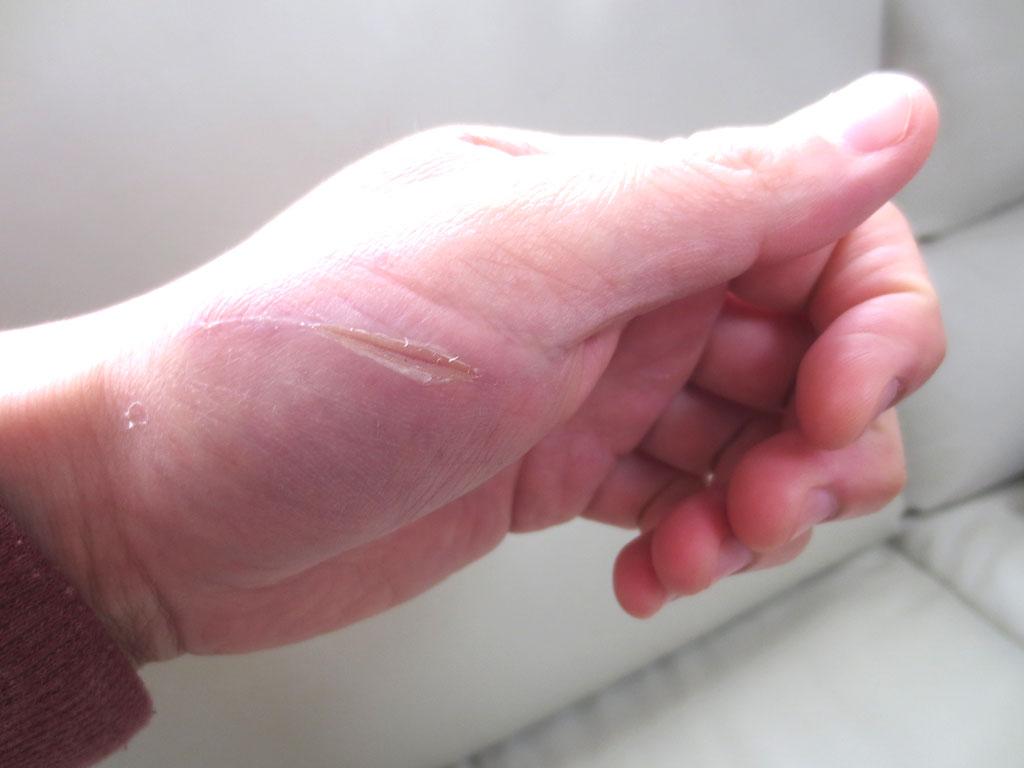 今朝の私の手の傷。