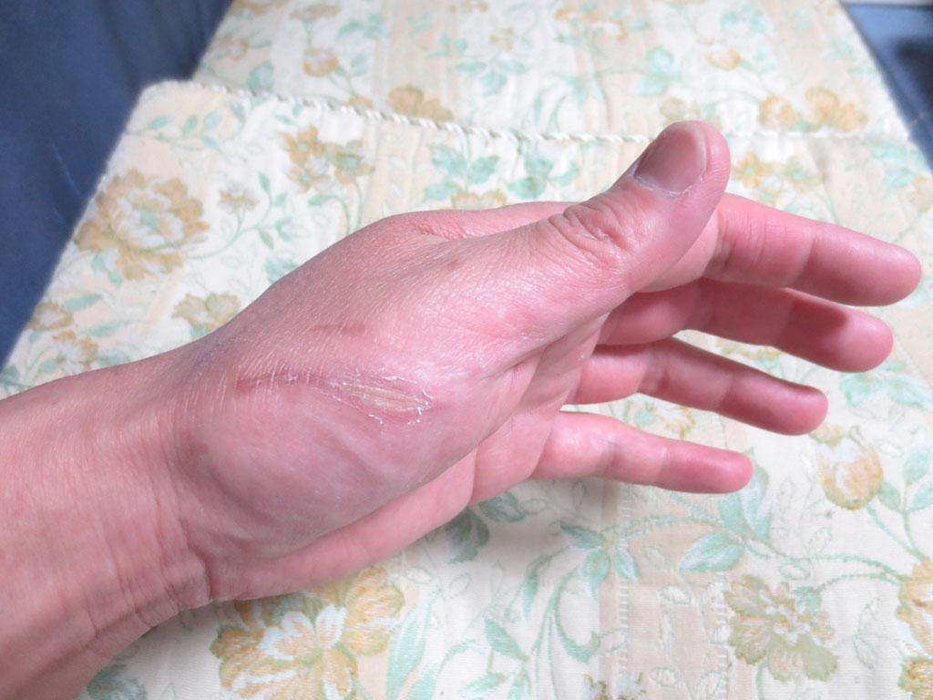 私の手の傷も治りました。