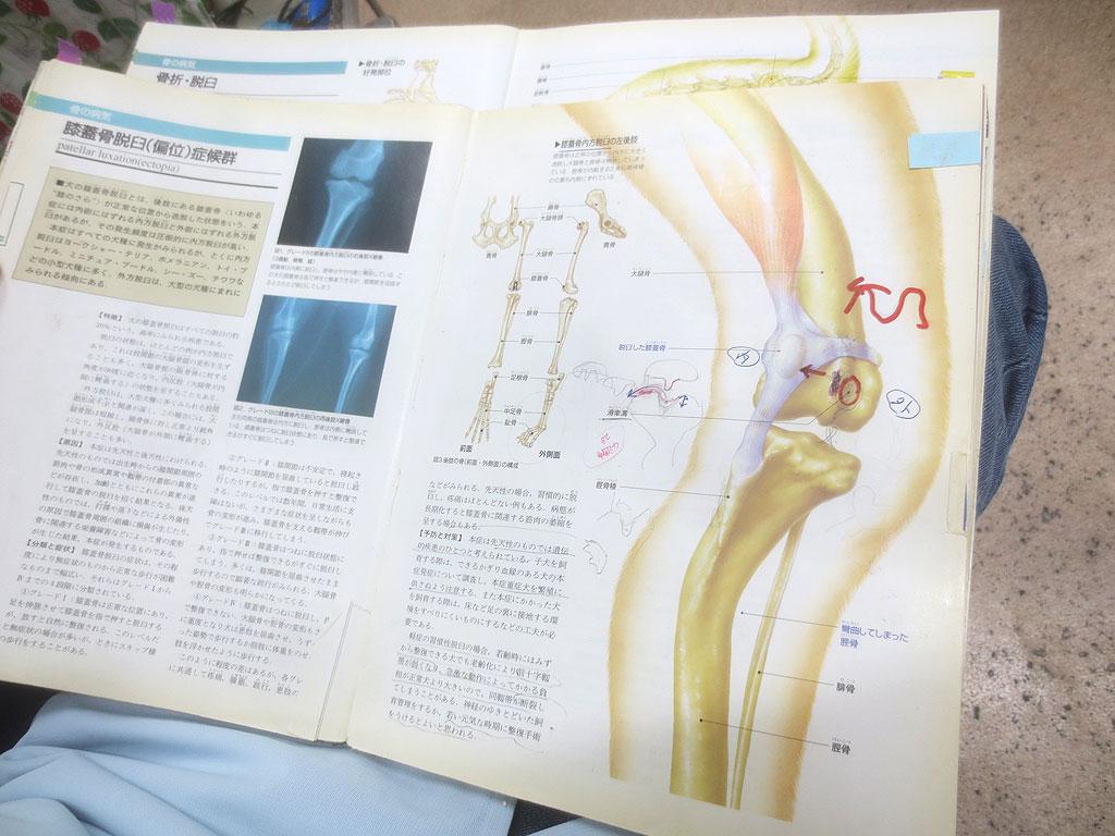 膝蓋骨脱臼の説明を聞く私。