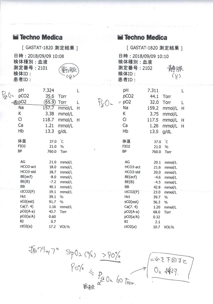 ロシ子の血液ガス測定の結果。
