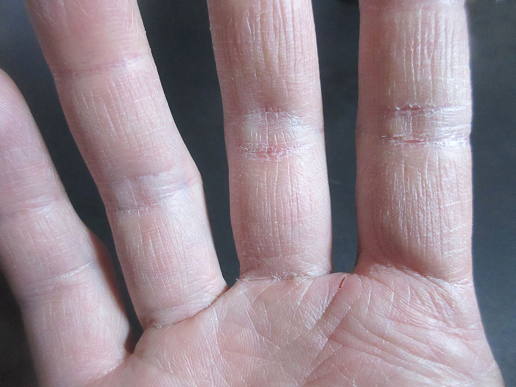 私の右手。