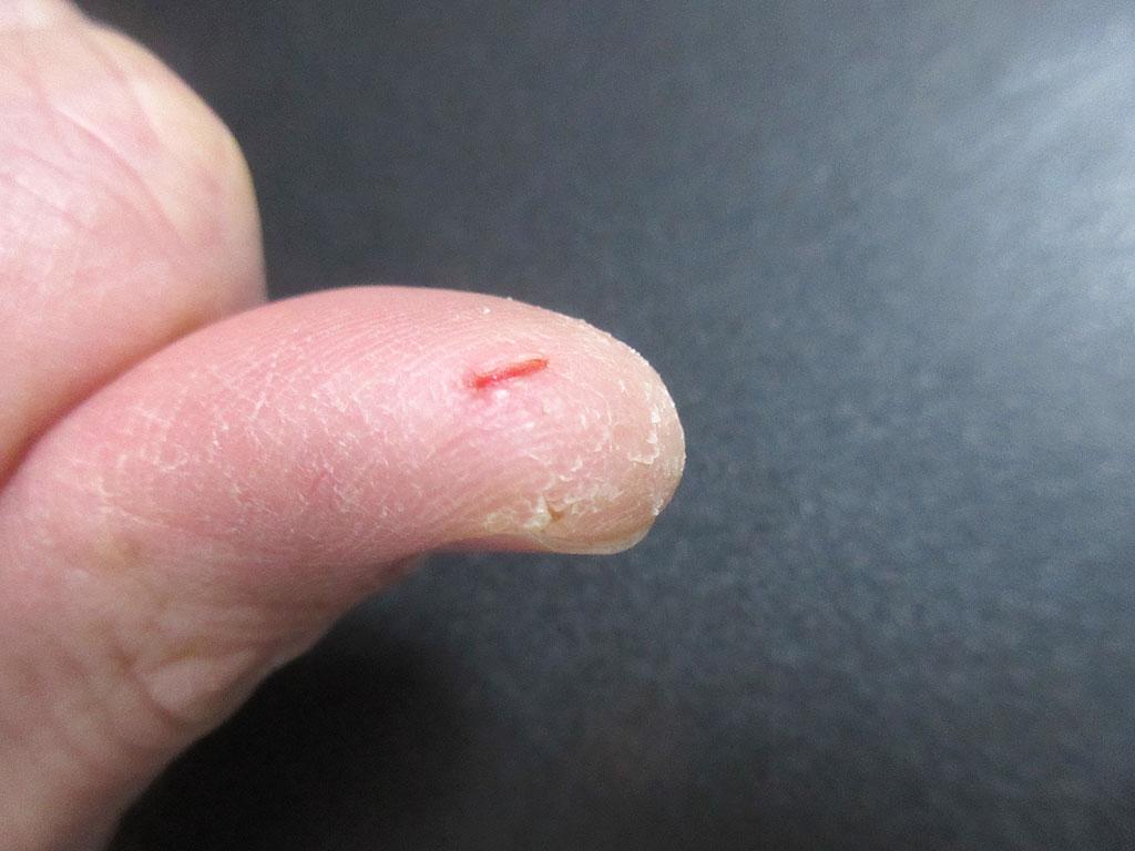 俺のパックリ割れた親指。