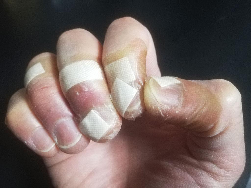 私のボロボロの指。